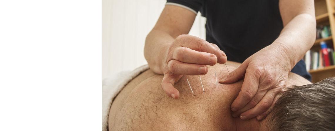Smertebehandling med nåler
